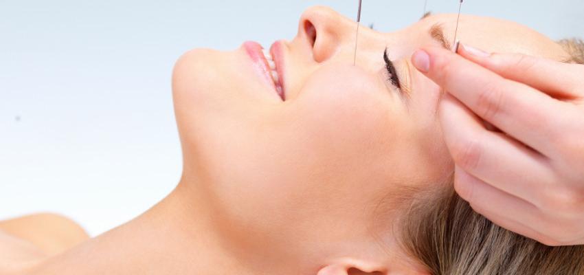 Conheça os benefícios da acupuntura para o corpo e a mente