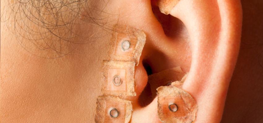 Descubra o que é e como funciona a auriculoterapia