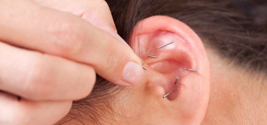 Como a acupuntura atua no combate à ansiedade?