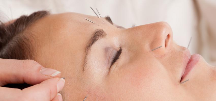 Acupuntura facial: rejuvenescedora, combate rugas e flacidez