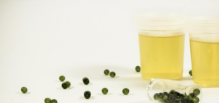 Gomutra e a Ayurveda: como funcionam os tratamentos à base de urina?