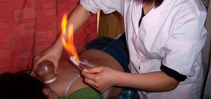 Ventosaterapia - o tratamento que reduz dores e previne lesões