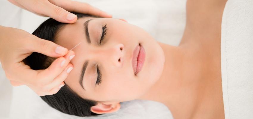 Acupuntura estética — tratamento para rugas, estrias, celulites e mais